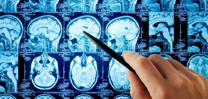 fellowship in neurosurgery